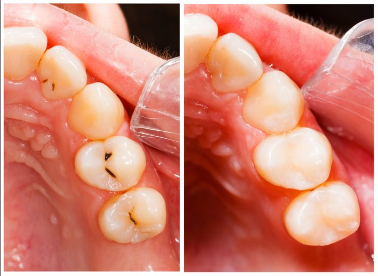 Composite Tooth Colored-Fillings